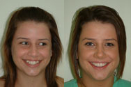 Click to view before & after treatment